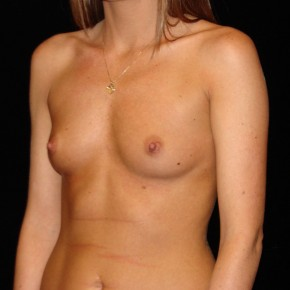 Before Photo - Breast Augmentation - Case #14636 - Breast Implants - Lateral View
