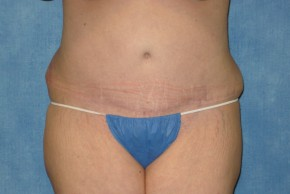 After Photo - Tummy Tuck - Case #14643 - Extended Tummy Tuck - Frontal View