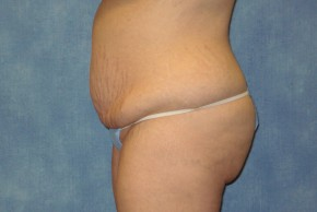 Before Photo - Tummy Tuck - Case #14643 - Extended Tummy Tuck - Lateral View