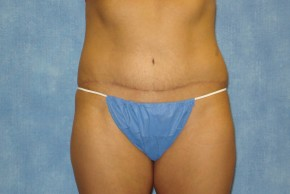 After Photo - Tummy Tuck - Case #14644 - Full Tummy Tuck  - Frontal View