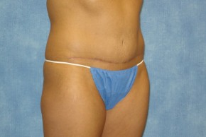 After Photo - Tummy Tuck - Case #14644 - Full Tummy Tuck  - Oblique View