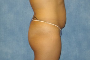 Before Photo - Tummy Tuck - Case #14644 - Full Tummy Tuck  - Lateral View