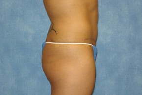 After Photo - Tummy Tuck - Case #14644 - Full Tummy Tuck  - Lateral View
