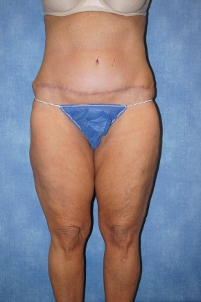 After Photo - Tummy Tuck - Case #14645 - Tummy Tuck & Liposuction - Frontal View