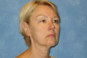 Before Photo - Facelift - Case #14656 - Facelift & Forehead Browlift - Oblique View