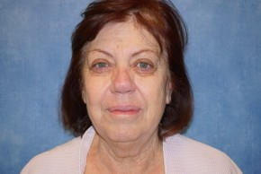 Before Photo - Facelift - Case #14657 - Facelift (Rhytidectomy) - Frontal View