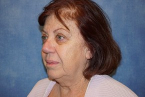 Before Photo - Facelift - Case #14657 - Facelift (Rhytidectomy) - Oblique View