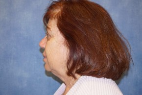 Before Photo - Facelift - Case #14657 - Facelift (Rhytidectomy) - Lateral View