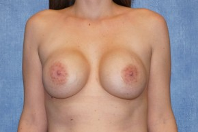 Before Photo - Breast Revision - Case #14660 - Breast Implant Removal - Frontal View