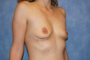 After Photo - Breast Revision - Case #14660 - Breast Implant Removal - Oblique View