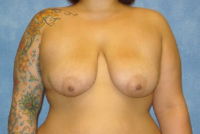 Before Photo - Breast Lift - Case #14661 - Breast Lift with Implants - Frontal View