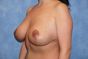 After Photo - Breast Revision - Case #14662 - Breast Lift with Implants - Oblique View
