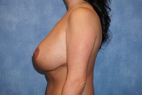 After Photo - Breast Revision - Case #14662 - Breast Lift with Implants - Lateral View