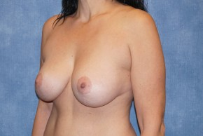 After Photo - Breast Lift - Case #14663 - Breast Lift with Implants - Oblique View