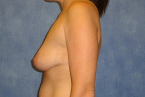 Before Photo - Breast Lift - Case #14663 - Breast Lift with Implants - Lateral View