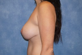 After Photo - Breast Lift - Case #14663 - Breast Lift with Implants - Lateral View