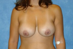 Before Photo - Breast Lift - Case #14664 - Breast Lift with Exchange - Frontal View