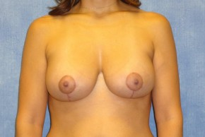 After Photo - Breast Lift - Case #14664 - Breast Lift with Exchange - Frontal View