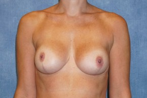 After Photo - Breast Lift - Case #14665 - Breast Lift with Implants - Frontal View