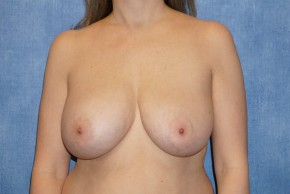 Before Photo - Breast Lift - Case #14666 - Breast Lift and Implant Removal - Frontal View