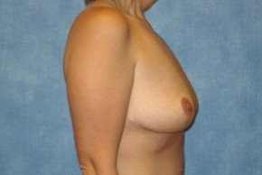 After Photo - Breast Lift - Case #14668 - Breast Lift (Mastopexy) - Oblique View