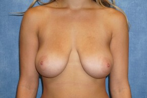 Before Photo - Breast Lift - Case #14669 - Frontal View