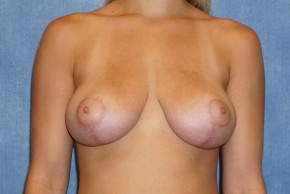 After Photo - Breast Lift - Case #14669 - Frontal View