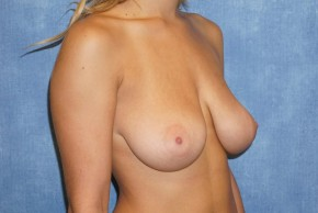 Before Photo - Breast Lift - Case #14669 - Oblique View