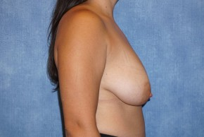 Before Photo - Breast Lift - Case #14670 - Lateral View