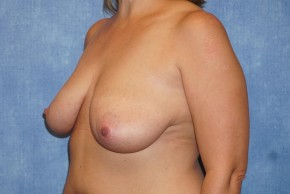 Before Photo - Breast Lift - Case #14671 - Breast Lift & Reduction - Oblique View