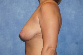 Before Photo - Breast Lift - Case #14671 - Breast Lift & Reduction - Lateral View