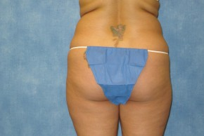 Before Photo - Liposuction - Case #14672 - Posterior View