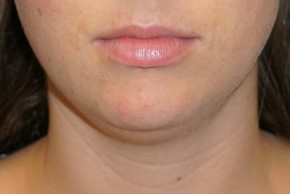 Before Photo - Liposuction - Case #14675 - Liposuction - Submental - Frontal View