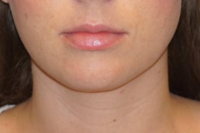 After Photo - Liposuction - Case #14675 - Liposuction - Submental - Frontal View