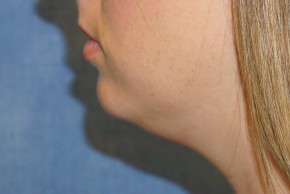 Before Photo - Liposuction - Case #14675 - Liposuction - Submental - Lateral View