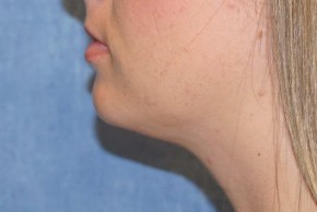 After Photo - Liposuction - Case #14675 - Liposuction - Submental - Lateral View