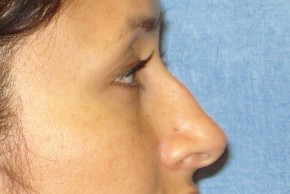 Before Photo - Nose Surgery - Case #14676 - Rhinoplasty - Nose Surgery - Lateral View