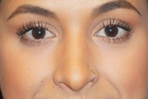 After Photo - Nose Surgery - Case #14677 - Rhinoplasty - Frontal View