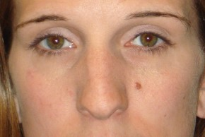 Before Photo - Nose Surgery - Case #14678 - Frontal View