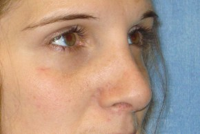 After Photo - Nose Surgery - Case #14678 - Oblique View