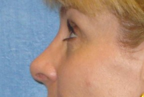 After Photo - Nose Surgery - Case #14679 - Rhinoplasty - Lateral View