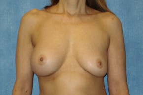 Before Photo - Breast Revision - Case #14682 - Breast Implant Exchange - Frontal View