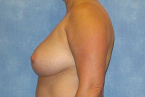 Before Photo - Breast Revision - Case #14683 - Implant Removal & Replacement - Lateral View