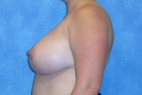 After Photo - Breast Revision - Case #14683 - Implant Removal & Replacement - Lateral View