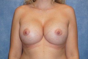 After Photo - Breast Revision - Case #14684 - Implant Removal & Replacement - Frontal View