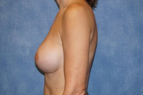 After Photo - Breast Revision - Case #14685 - Breast Implant Exchange - Lateral View