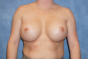 Before Photo - Breast Revision - Case #14686 - Implant Exchange - Frontal View