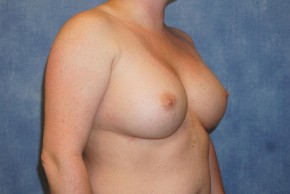 After Photo - Breast Revision - Case #14686 - Implant Exchange - Oblique View