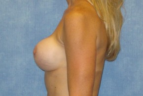 Before Photo - Breast Revision - Case #14687 - Implant Exchange - Lateral View