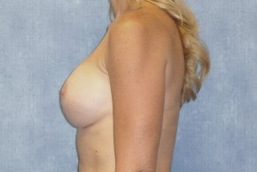 After Photo - Breast Revision - Case #14687 - Implant Exchange - Lateral View